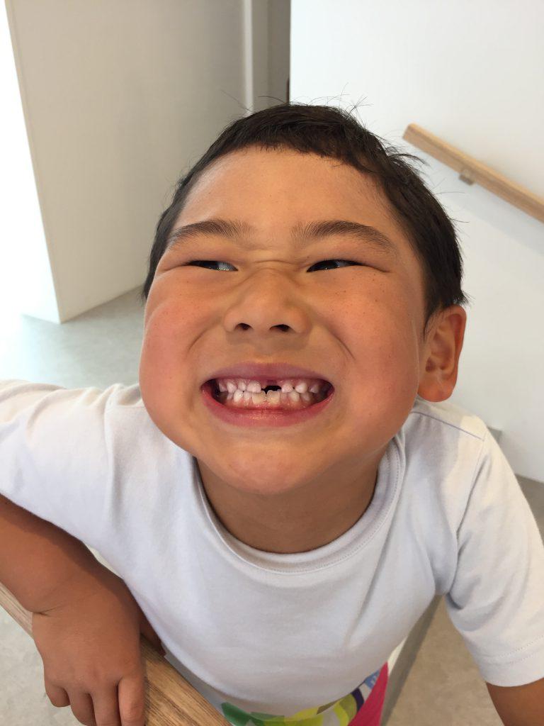 乳歯が抜けたよ!
